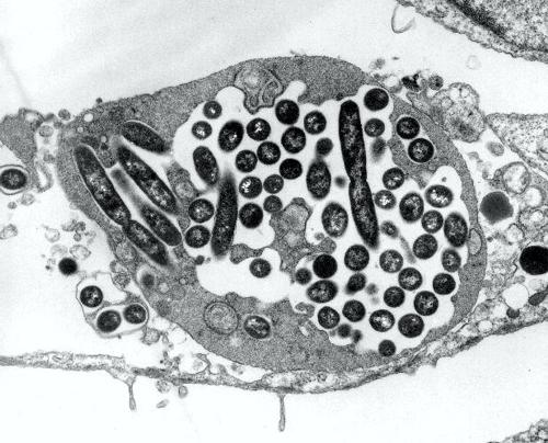 LegionellaPneumophila_Weikipedia 500